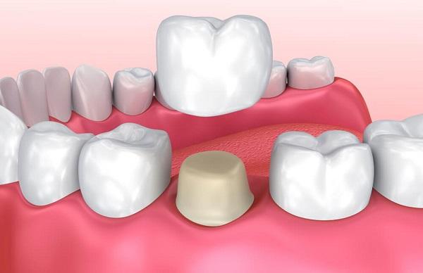 chỉnh 1 răng lệch giá bao nhiêu, chỉnh một răng lệch giá bao nhiêu