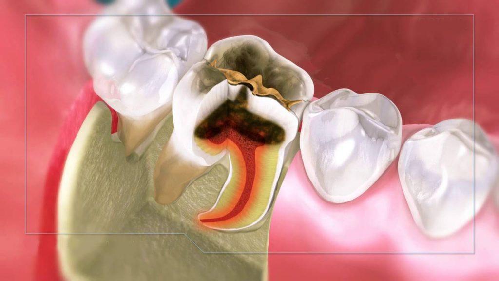 răng sâu vào tủy, răng bị sâu vào tủy, điều trị răng sâu vào tuỷ, trị sâu răng ăn vào tủy