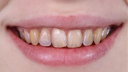 mòn men răng, răng bị mòn dần, nguyên nhân hỏng men răng, dấu hiệu mòn răng, răng bị mòn mặt nhai, cách chữa trị mòn cổ răng