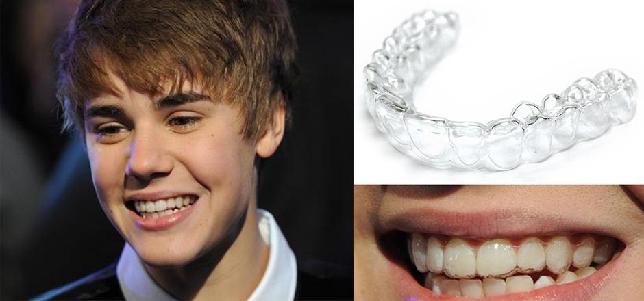 người nổi tiếng niềng răng, những người nổi tiếng niềng răng