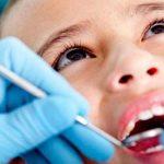 Nhổ răng sữa bị sâu sao cho an toàn | Kiến thức làm cha mẹ cần biết
