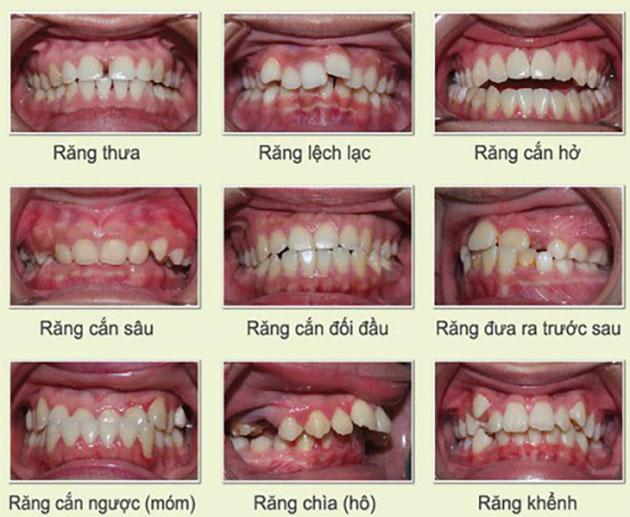niềng răng thay đổi vận mệnh, niềng răng có thay đổi vận mệnh