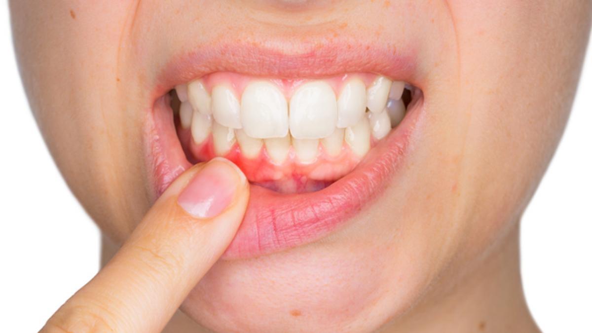 nướu răng tiếng anh là gì, nướu răng tiếng anh, lợi răng tiếng anh là gì, lợi răng tiếng anh, viêm nướu răng tiếng anh là gì, sưng nướu răng tiếng anh, nướu răng trong tiếng anh, viêm nướu răng tiếng anh, sưng nướu răng tiếng anh là gì, bệnh nướu răng tiếng anh là gì