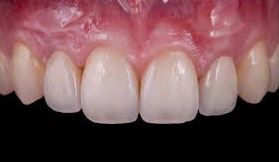 nướu răng tiếng anh là gì, nướu răng tiếng anh, lợi răng tiếng anh là gì, lợi răng tiếng anh, viêm nướu răng tiếng anh là gì, sưng nướu răng tiếng anh, nướu răng trong tiếng anh, viêm nướu răng tiếng anh, sưng nướu răng tiếng anh là gì, bệnh nướu răng tiếng anh là gì, nướu tiếng anh là gì, nướu tiếng anh, viêm nướu tiếng anh là gì, viêm lợi tiếng anh là gì, viêm nướu tiếng anh