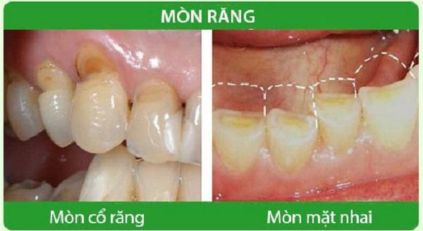 Răng bị ăn mòn