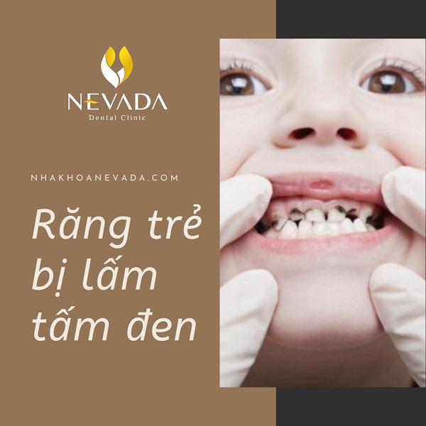 răng bé bị lấm tấm đen, răng em bé bị đen, bé 4 tuổi bị đen răng, răng trẻ bị đốm đen, bé 16 tháng bị đen răng, răng trẻ em bị xỉn đen