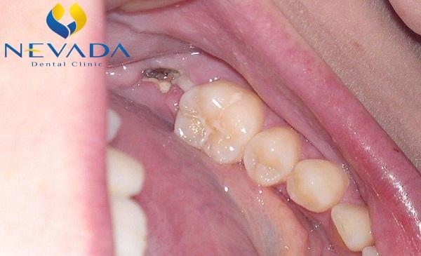 răng hàm bị sâu chỉ còn chân răng, răng hàm bị sâu, răng hàm bị sâu chỉ còn chân, răng sâu bị vỡ chỉ còn chân răng, răng bị sâu chỉ còn chân răng, sâu răng chỉ còn chân, nhổ răng sâu chỉ còn chân răng