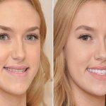 Cách khắc phục răng hàm dưới mọc lệch vào trong hiệu quả nhất hiện nay