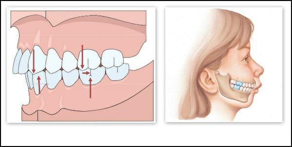 chỉnh răng hàm dưới mọc lệch, răng hàm dưới mọc lệch, răng hàm dưới mọc lệch vào trong