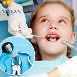 """Răng kẹ là gì? Làm rõ """"bộ mặt"""" của chiếc răng """"Tuesday"""""""