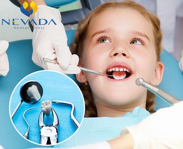 Răng kẹ là gì