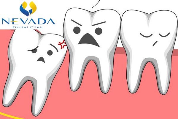 nhổ răng khôn mọc thẳng, răng khôn mọc thẳng có nên nhổ không, răng khôn mọc thẳng có nên nhổ, răng khôn mọc thẳng có cần nhổ, răng khôn mọc thẳng có cần nhổ không, giá nhổ răng khôn mọc thẳng, răng khôn mọc thẳng có phải nhổ không, có nên nhổ răng khôn mọc thẳng, có nên nhổ răng khôn mọc thẳng không