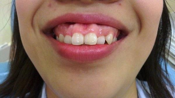răng ngắn, răng ngắn phải làm sao, răng nhỏ ngắn, răng dài răng ngắn