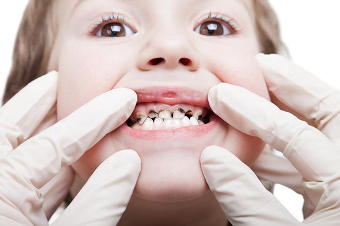 Răng sữa bị sâu phải làm sao