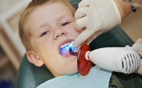 răng trẻ 1 tuổi bị ố vàng, răng trẻ 1 tuổi bị vàng, răng bé 1 tuổi bị vàng