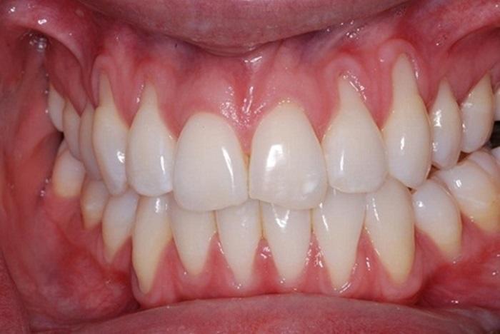 răng yếu, răng yếu phải làm sao, răng yếu lung lay, răng yếu có niềng được không, răng yếu ăn gì, răng yếu nên làm gì, răng yếu nên ăn gì, răng yếu là thiếu chất gì, răng yếu dễ vỡ, răng yếu bị lung lay, răng yếu sau khi sinh, răng yếu sau niềng, răng yếu nên bổ sung gì