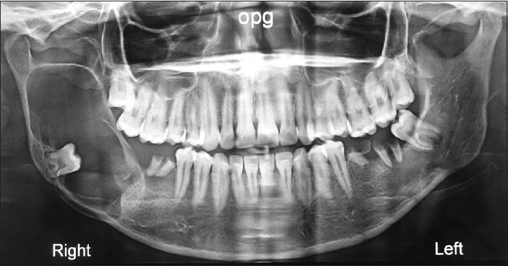 u men răng, hình ảnh u răng