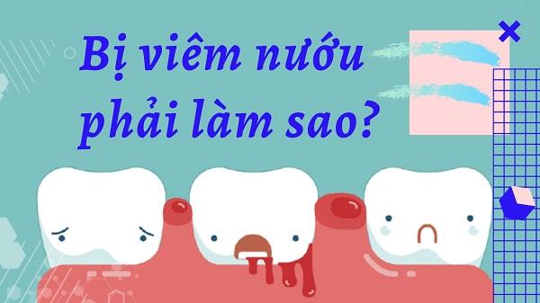 sưng nướu răng làm sao hết, Khi bị viêm nướu răng phải làm sao