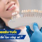 Bao nhiêu tuổi thì có thể bọc răng sứ?