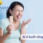 Dấu hiệu bị ê răng cửa | Lời cảnh báo về những tổn hại của răng