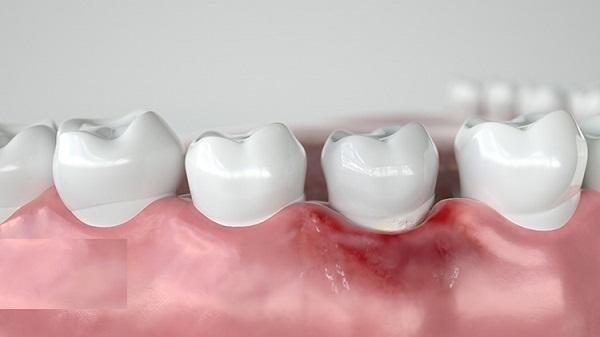 bọc răng sứ bị đen chân răng, bọc răng sứ có bị đen chân răng không, trồng răng sứ bị đen chân răng,
