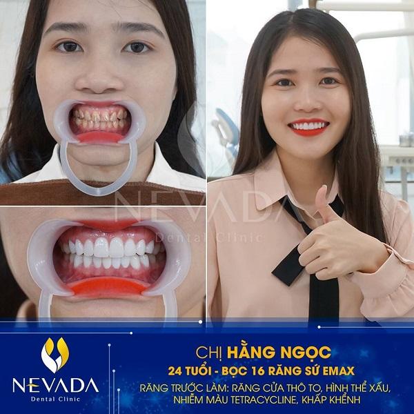 Bọc răng sứ bị ngứa lợi, Bọc răng sứ bị ngứa, làm răng sứ bị ngứa