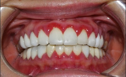 Bọc răng sứ bị ngứa lợi, Bọc răng sứ bị ngứa, làm răng sứ bị ngứa, bọc răng sứ bị viêm lợi