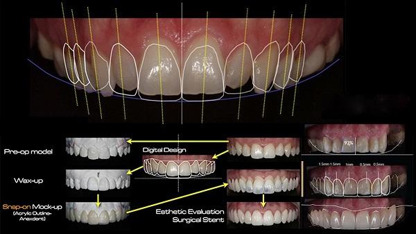 bọc răng sứ cho răng thưa giá bao nhiêu, bọc răng sứ cho răng thưa bao nhiêu tiền, bọc răng thưa bao nhiêu tiền, bọc sứ răng thưa bao nhiêu tiền