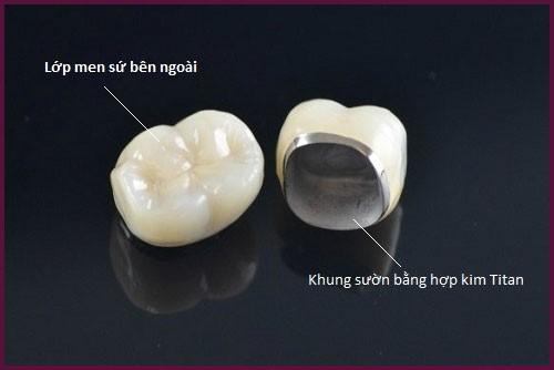 bọc răng sứ có tác dụng gì