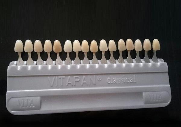 bọc răng sứ như thế nào, bọc răng sứ như thế nào là đẹp, bọc răng sứ thẩm mỹ như thế nào, bọc răng sứ là làm như thế nào