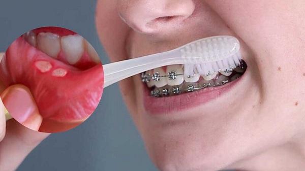 cách chữa nhiệt miệng triệt để