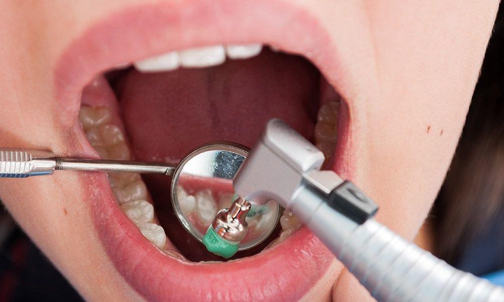 lấy cao răng định kỳ, lấy cao răng định kỳ có tốt không, có nên lấy cao răng định kỳ, tác dụng của lấy cao răng định kỳ