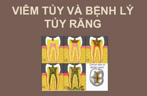 điều trị nội nha, điều trị nội nha là gì, quy trình điều trị nội nha, máy điều trị nội nha, kỹ thuật điều trị nội nha, giá máy điều trị nội nha, tiên lượng điều trị nội nha, máy điều trị nội nha morita, nguyên nhân thất bại trong điều trị nội nha, điều trị nội nha bằng máy, điều trị nội nha lại, điều trị nội nha răng sữa, điều trị nội nha hiệu quả, máy điều trị nội nha, sách điều trị nội nha, máy điều trị nội nha nsk, điều trị nội nha giá bao nhiêu