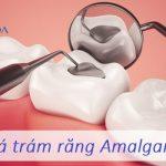"""Giá trám răng Amalgam là bao nhiêu? Liệu chất trám Amalgam có xứng """"đồng tiền bát gạo""""?"""