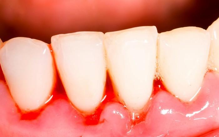 hình ảnh sưng nướu răng