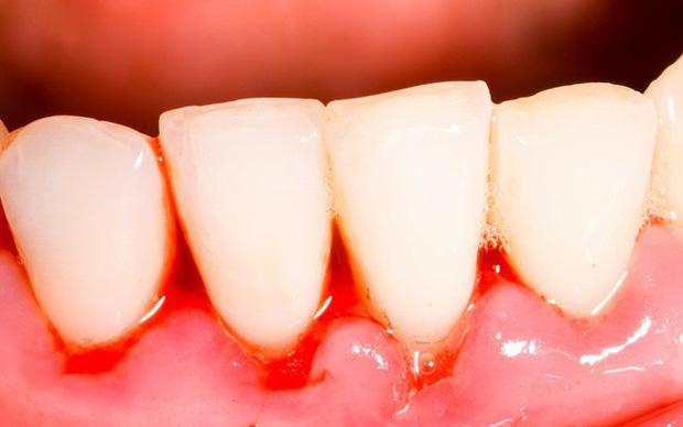 hình ảnh viêm nướu răng, hình ảnh viêm lợi răng, hình ảnh bệnh viêm nướu răng