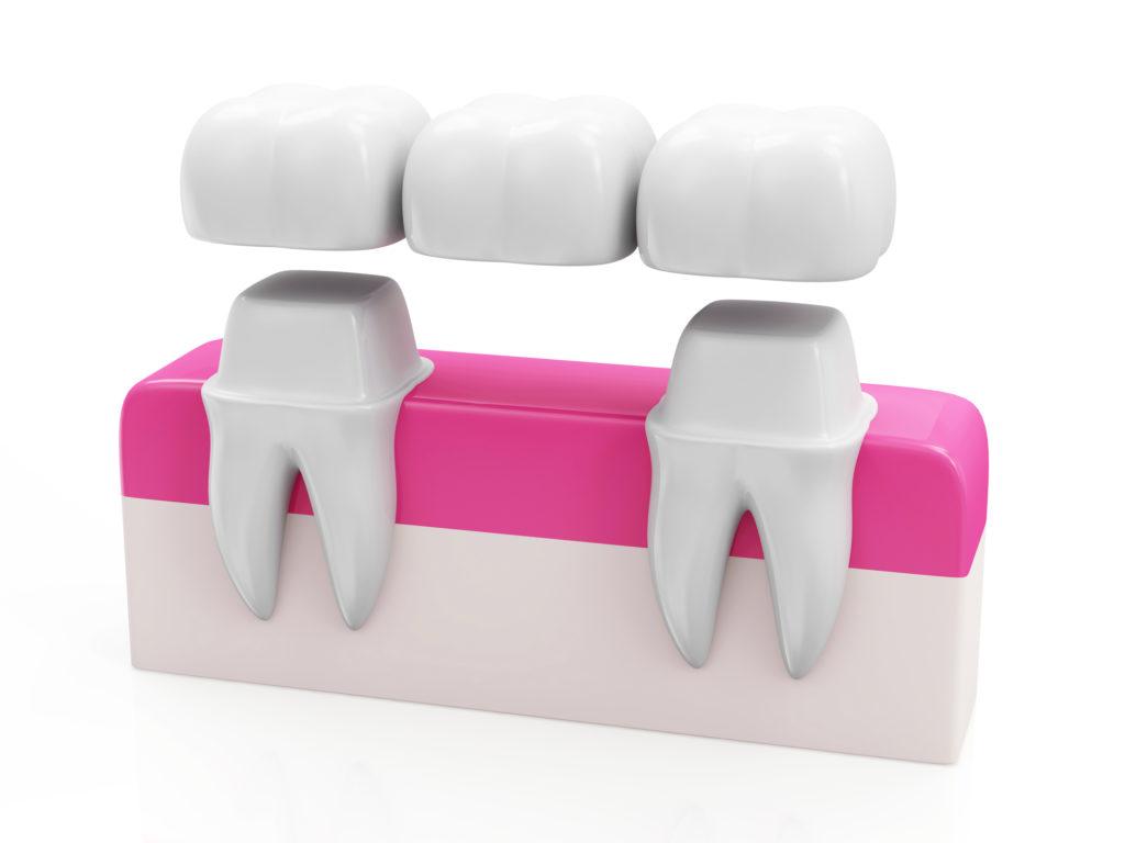 cầu răng sứ titan, làm cầu răng sứ titan