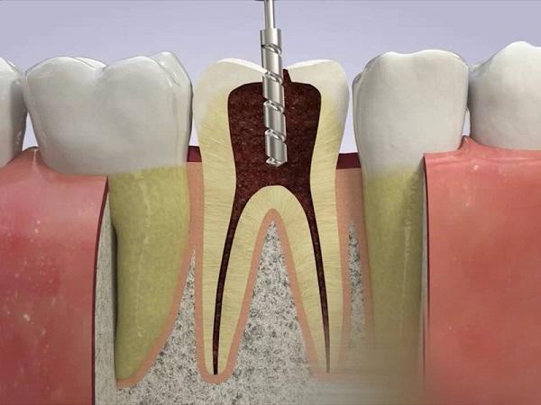 lấy tủy răng có chích thuốc tê không