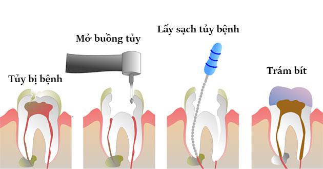 lấy tủy răng có nguy hiểm không