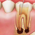 Lấy tuỷ răng để làm gì? Những trường hợp nên lấy tuỷ răng