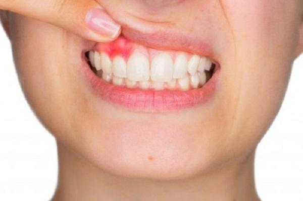 Lấy tủy răng bao nhiêu lần mới hoàn tất 4