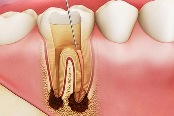 Lấy tủy răng bao nhiêu lần mới hoàn tất 1