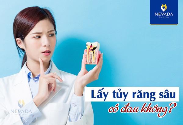 hút tủy răng đau cỡ nào, lấy tủy răng có đau không webtretho, lấy tủy răng sâu có đau không, review lấy tủy răng có đau không