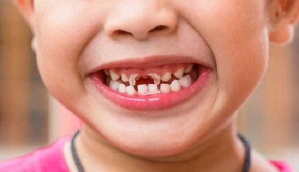 Quy trình lấy tủy răng sữa tại nha khoa Westcoast