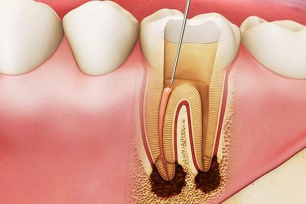 lấy tủy răng xong bị đau, lấy tuỷ răng xong có bị đau không, sau khi lấy tủy răng có đau không, triệu chứng sau khi lấy tuỷ răng