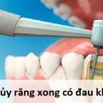 Giải đáp thắc mắc lấy tuỷ răng xong có bị đau không? Lấy tủy răng có biến chứng gì không?