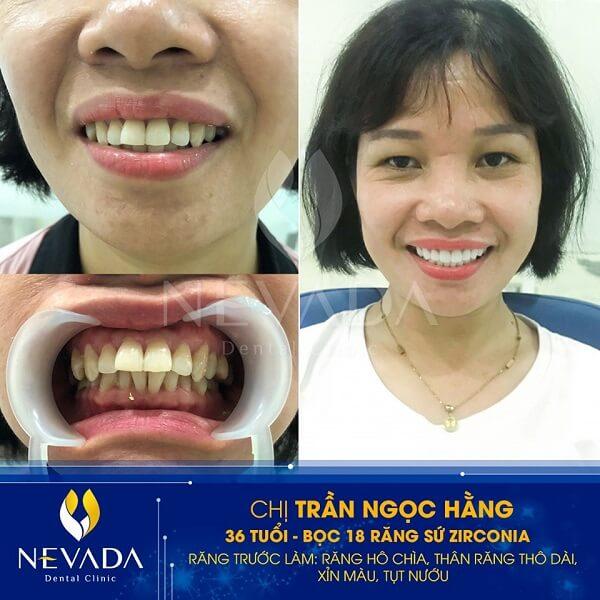 bọc răng sứ loại nào tốt, bọc răng sứ loại nào là tốt nhất, bọc răng sứ loại nào đẹp nhất, bọc răng sứ loại nào, nên bọc răng sứ loại nào, nên bọc răng sứ loại nào tốt, nên bọc răng sứ loại nào webtretho,