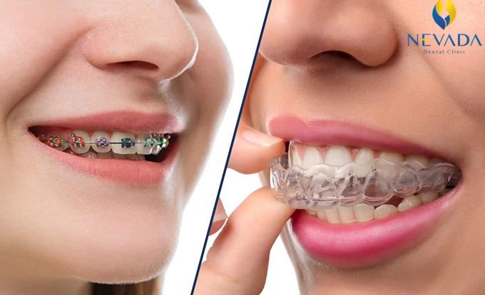 nẹp răng trong suốt, nẹp răng trong suốt giá bao nhiêu, nẹp răng trong suốt bao nhiêu tiền