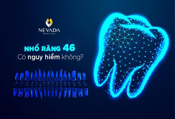 răng 46, nhổ răng 46 có nguy hiểm không, nhổ răng 46, răng 46 là răng nào, răng 46 47, răng số 46, nhổ răng 46 có ảnh hưởng gì không