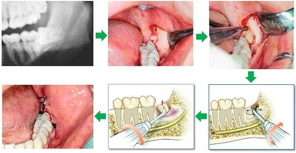 răng 46, nhổ răng 46 có nguy hiểm không, nhổ răng 46, răng 46 là răng nào, răng 46 47, răng số 46